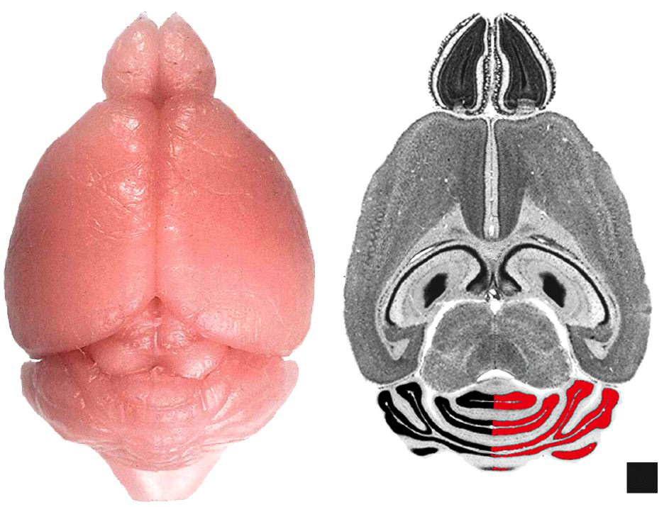 Figure 1: Methods of Analysis of Cerebellum
